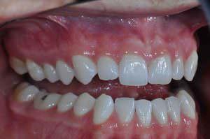 Buccal Retracted Teeth Apart Web