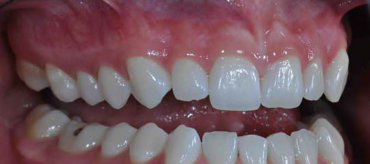 Taking A Buccal Retracted Photogragh