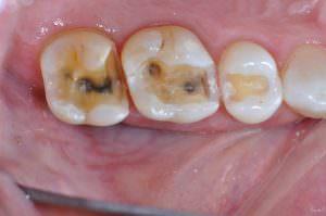 Molar teeth with restorations