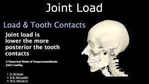 Joint Load.028