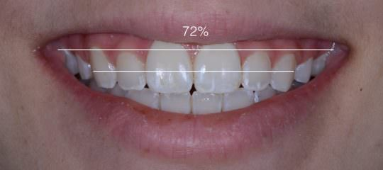 Smile Design Using Esthetic Zone Ratios