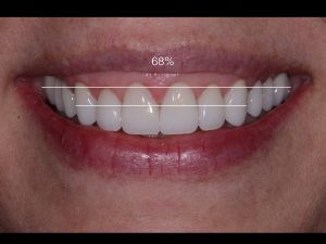 Photo of person's smile with treatment measurements drawn over them