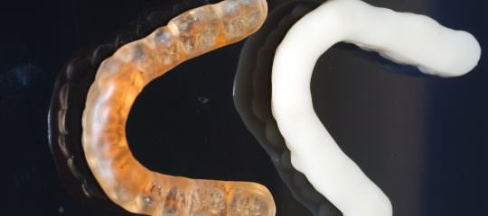Digital Bite Splints