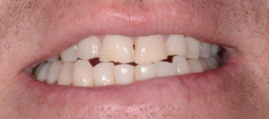 Patient Communication: You Grind Your Teeth