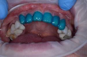 Upper arch of teeth with blue material covering