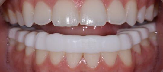 Milled Vs. Printed Dental Appliances