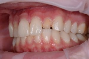 Damaged tooth for Anterior Composite Layering