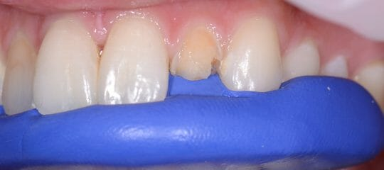 Anterior Composite Layering: The Key to Creating a Color Recipe