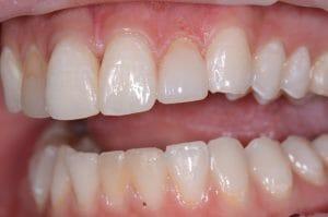 Tooth repaired using Anterior Composite Layering