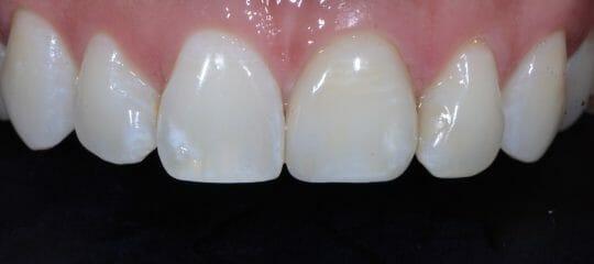 Anterior Dental Implant Risk Factors