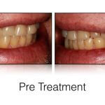 Using a Tooth Preparation Matrix in a Smile Design