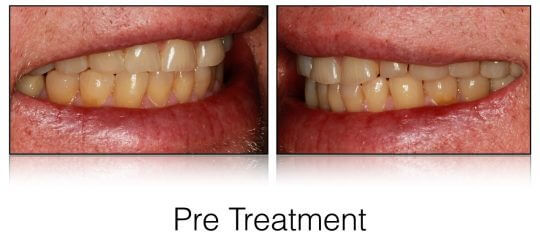 Pretreatment photos of patients smile from the side