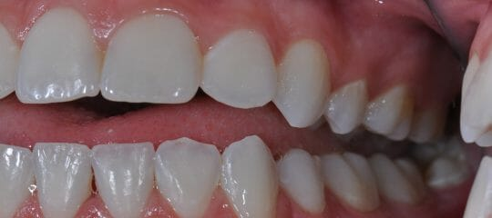 Anterior Implants: Incisor Inclination