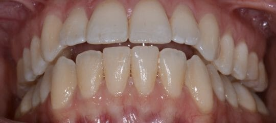 Anterior Implants: Facial Root Prominence