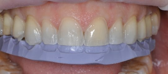 Porcelain Veneers: When To Cover The Incisal Edge