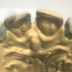 Mocking Up Teeth For Ortho