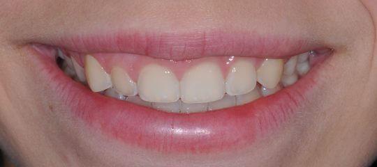 Diagnosing A Gummy Smile