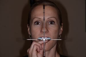 Dentofacial analyzer in place on patient