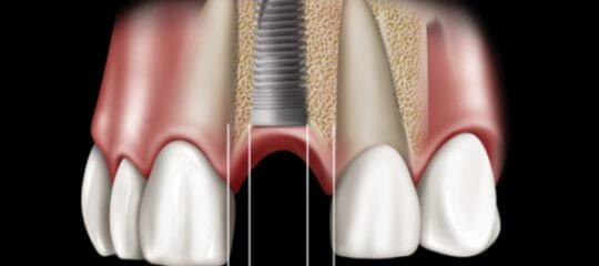 Anterior Implant Treatment Planning