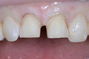 Anterior veneer tooth prep