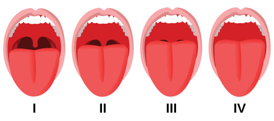 Diagram of 4 open mouths