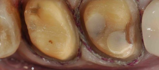 Image of teeth that have been prepped