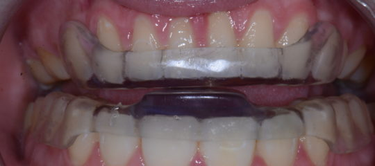 Front teeth with anterior appliance