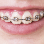 close up of smiling person's teeth with braces