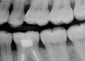 dental xray of multiple teeth