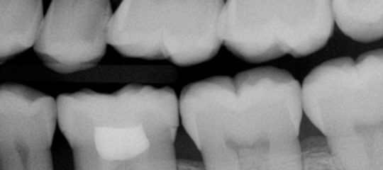 dental xray of multiple teeth