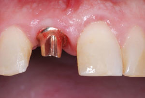 Dental implant abutment in mouth