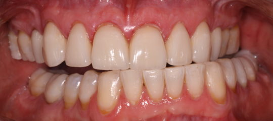 upper and lower front teeth not symetrical