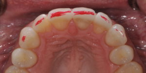 Top view of front teeth showing red marks to adjust incisal pitch