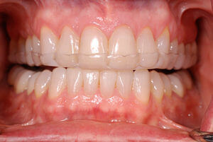 Upper and lower frontb teeth with an clear occlusal dental appliance