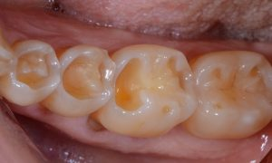 Molar teeth showing severe wear
