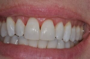 Front teeth using icon post-op