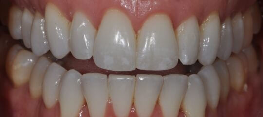 Front teeth using Icon Pre-Op