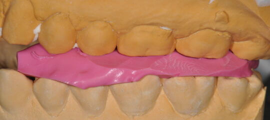 Side view of teeth model with pink bite material