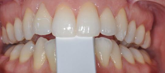 Teeth biting on measuring tool