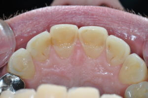 Single arch of teeth
