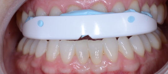quicksplint on upper teeth arch