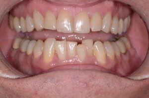 worn upper and lower teeth