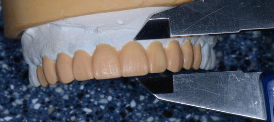 Dental teeth model being measured by calipers