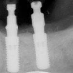 dental xray showing dental implants