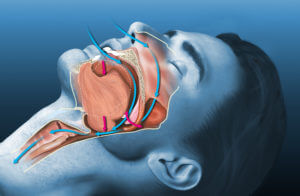 Color graphic of airways in male's head