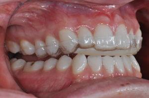 Teeth biting on clear dental appliance
