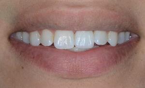 Smile after dental implant treatment
