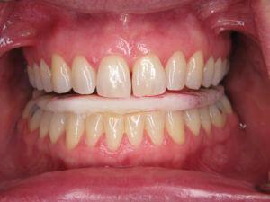 Teeth biting on dental appliance